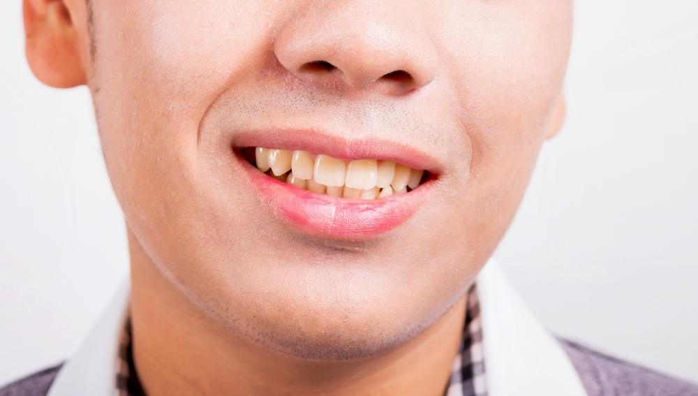 tooth discoloration causes remedies